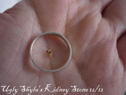 kidneystonedec12